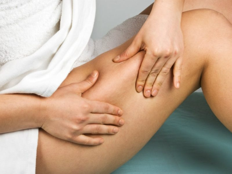 smagliature e cellulite